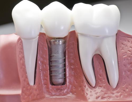 Dentista Porto Alegre | Implante Dentário