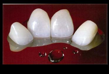 Dentista Porto Alegre | Prótese dentária